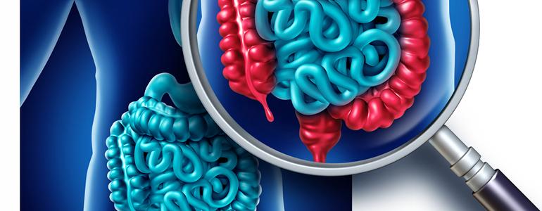 Divertikulitis Ursachen - Divertikulitis – die tückische Darmkrankheit erkennen und behandeln